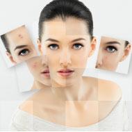 顔のシミ治療(初回)9,800円フォトフェイシャルM22