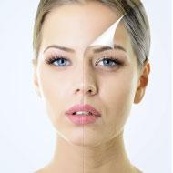 NEWグルタチオン(美白)肌再生治療(フレンチショットU225)顔全